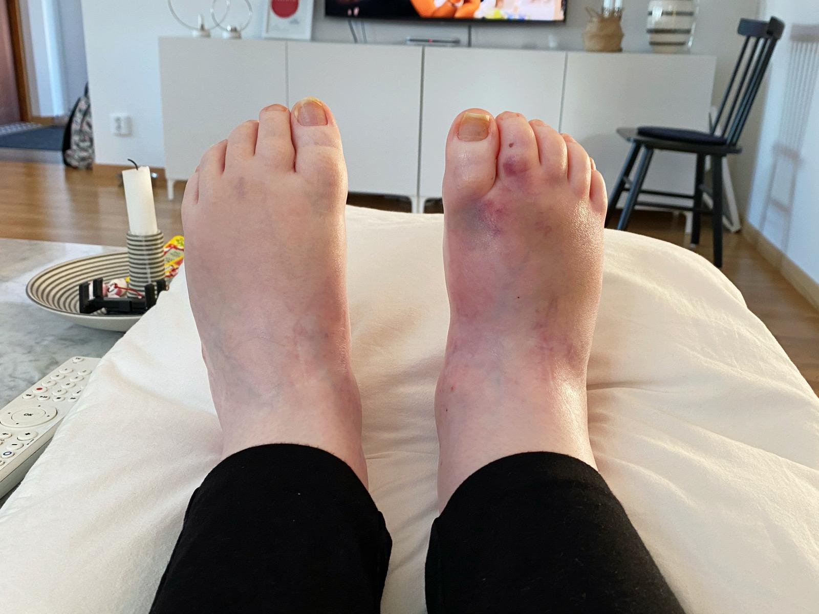 fötterna 210208