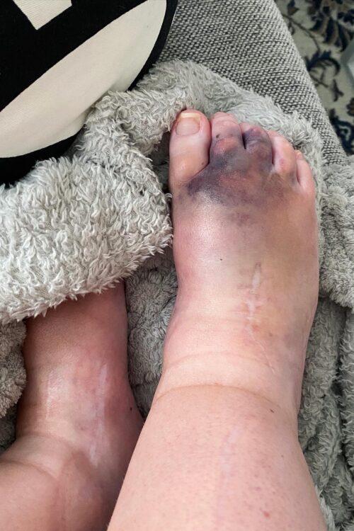 Akutröntgen på foten